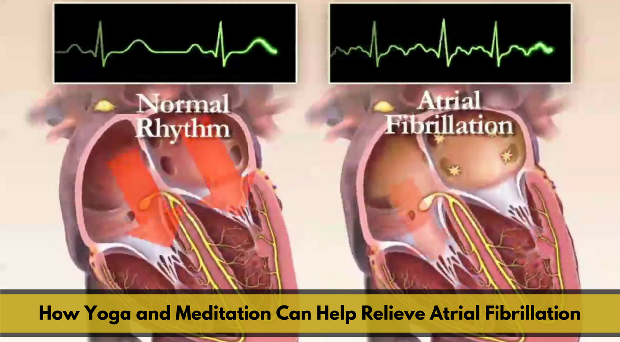How Yoga and Meditation Can Help Relieve Atrial Fibrillation